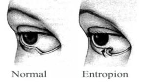 entropian illusration e1536604387931