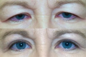 ptosis before